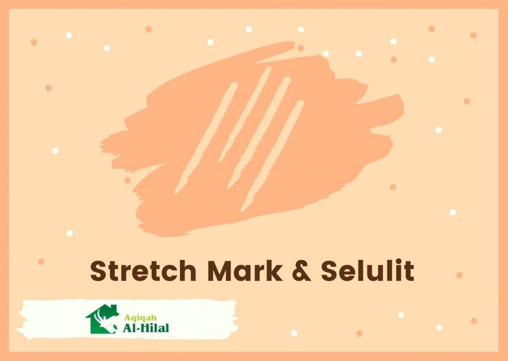 perbedaan strech mark dan selulit